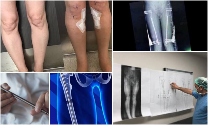Bacak uzatma Ameliyatı- Leg Lengthening Surgery