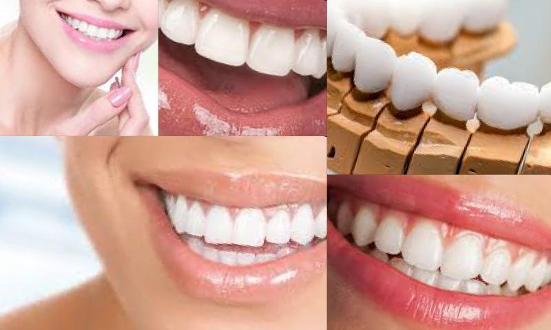 Zirkonyum Kaplama İle Doğal ve Estetik Dişlere Kavuşun