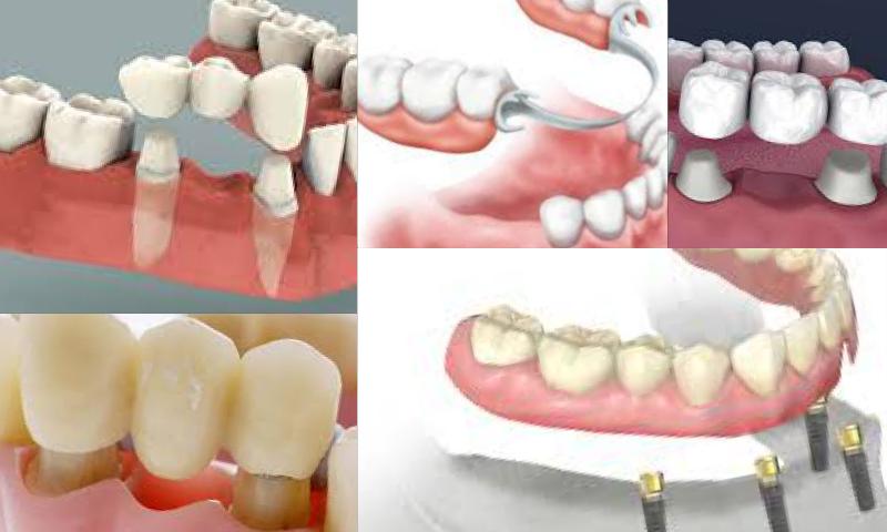 Diş Hekimliğinde Zirkonyum Maddesi Nasıl Kullanılmaya Başladı?